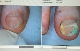 Lézeres körömgomba kezelés – utána/előtte 2