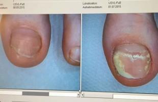 Lézeres körömgomba kezelés – utána/előtte 3