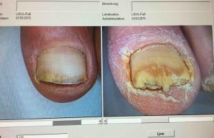 Lézeres körömgomba kezelés – utána/előtte 8